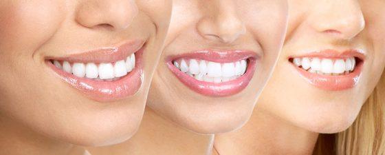 Чем опасно отбеливание зубов?