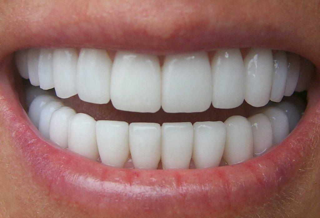 oboznachenieZub 1024x699 - Обозначение и нумерация зубов