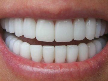 Обозначения зубов